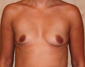 Breast Augmentation before 3318989