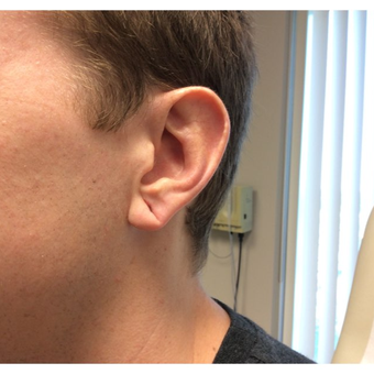 18-24 year old man treated with Ear Lobe Surgery before 3372680
