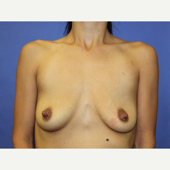 25-34 year old woman treated with Breast Augmentation before 3815466
