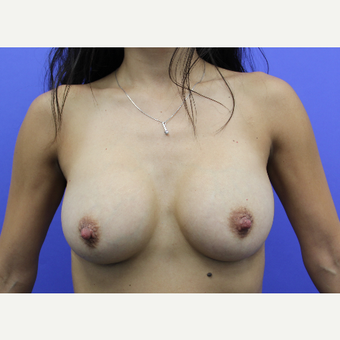 25-34 year old woman treated with Breast Augmentation after 3815466