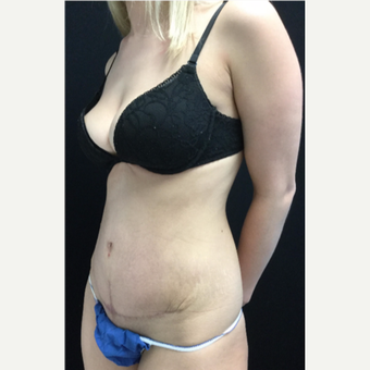 25-34 year old woman treated with Tummy Tuck after 3219070