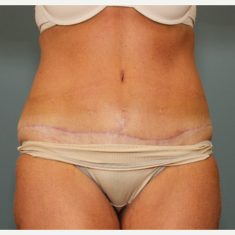 45-54 year old woman requesting a Tummy Tuck Revision after 3031533