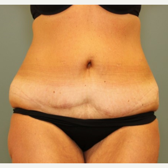 45-54 year old woman requesting a Tummy Tuck Revision before 3031533
