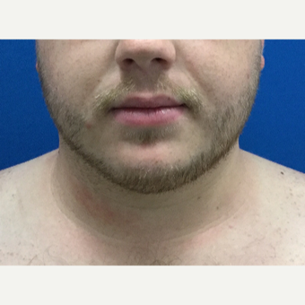 25-34 year old man treated with Liposuction after 3496295