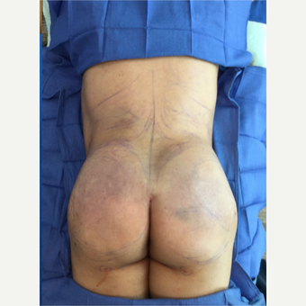 Woman treated with Brazilian Butt Lift; immediately afterwards after 3220242
