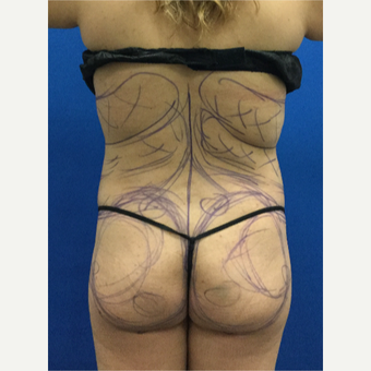 Woman treated with Brazilian Butt Lift; immediately afterwards before 3220242