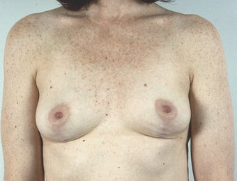 Implants Removed, Breast Lift after 1523629
