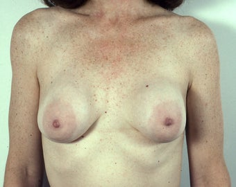 Implants Removed, Breast Lift before 1523629