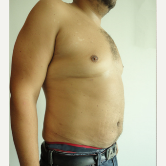 35-44 year old man treated with Vaser Liposuction after 3849164