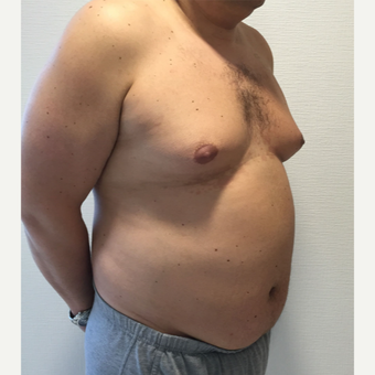 35-44 year old man treated with Vaser Liposuction before 3849164