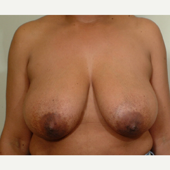 35-44 year old woman treated with Breast Reduction before 3603340