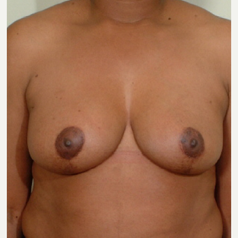 35-44 year old woman treated with Breast Reduction after 3603340