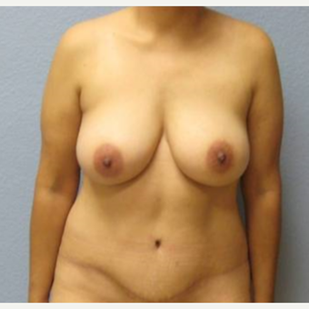 35-44 year old woman treated with Mommy Makeover after 3726291