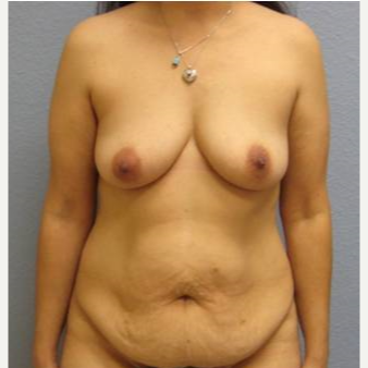 35-44 year old woman treated with Mommy Makeover before 3726291