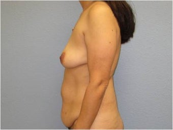 35-44 year old woman treated with Mommy Makeover 3726291
