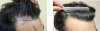 Frontal Hairline 1605 Grafts. Dense Packing