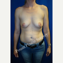 35-44 year old woman treated with Breast Implants before 3001478