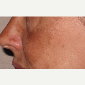 35-44 year old woman treated with Chemical Peel before 2713470