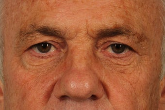 65 year old man treated with Brow Lift and Upper Lid Blepharoplasty