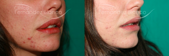 18-24 year old woman treated with Lip Reduction