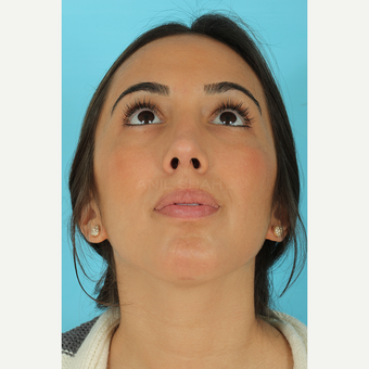 25-34 year old woman treated with Rhinoplasty after 3691152