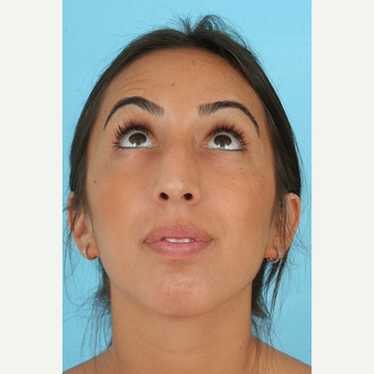 25-34 year old woman treated with Rhinoplasty before 3691152