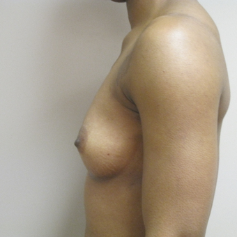 Breast Augmentation before 3549845