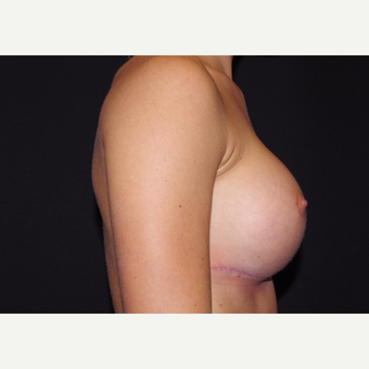 18-24 year old woman treated with Breast Implants after 3440889