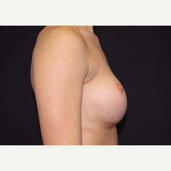 18-24 year old woman treated with Breast Implants before 3440889