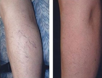 Sclerotherapy® before 995511