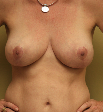 45 Year Old Mother of 3- Breast Reduction