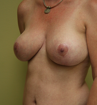 45 Year Old Mother of 3- Breast Reduction 1407234