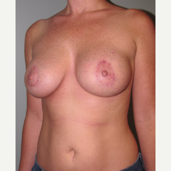 25-34 year old woman treated with Breast Lift with Implants after 3003874