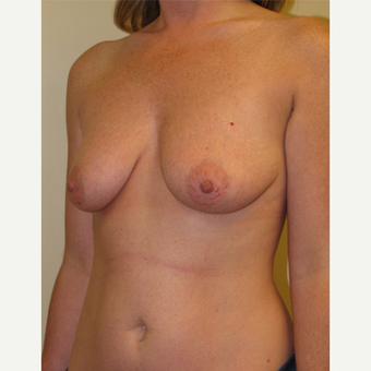 25-34 year old woman treated with Breast Lift with Implants before 3003874