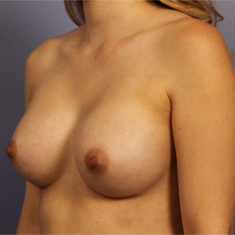 Breast Augmentation after 3657252