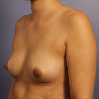 Breast Augmentation before 3657252