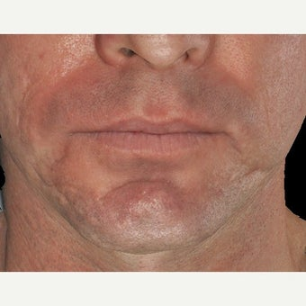 35-44 year old man treated with Infini RF for acne scarring before 1917331