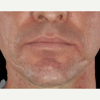 35-44 year old man treated with Infini RF for acne scarring after 1917331