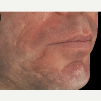 35-44 year old man treated with Infini RF for acne scarring 1917331