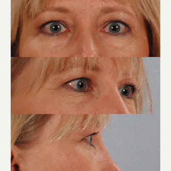 Eyelid Surgery before 3123765