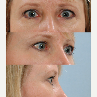Eyelid Surgery after 3123765