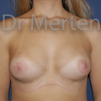 Tuberous breast correction by breast lift with implants after 3595305