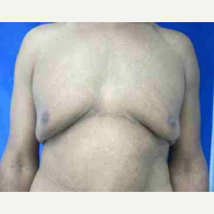 Male Breast Reduction before 3099946