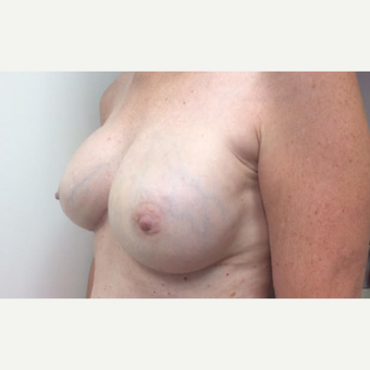 55-64 year old woman treated with Breast Reconstruction Revision after 3629584