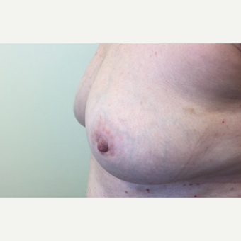 55-64 year old woman treated with Breast Reconstruction Revision before 3629584