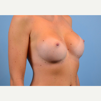 25-34 year old woman treated with Breast Implants after 3440034