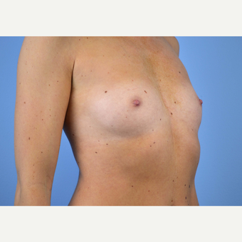 25-34 year old woman treated with Breast Implants before 3440034