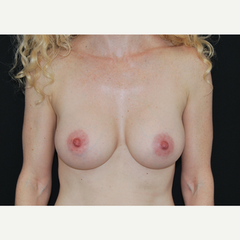 35-44 year old woman treated with Breast Implants after 3651331