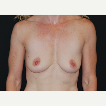 35-44 year old woman treated with Breast Implants before 3651331