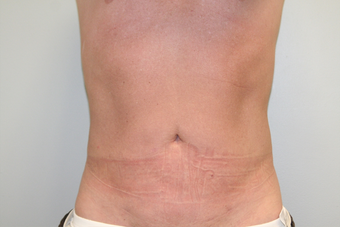 43 Year Old Male treated for fat removal and to enhance tissue tightening - Smartlipo